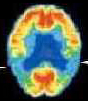 scan of brain with Alzheimer's